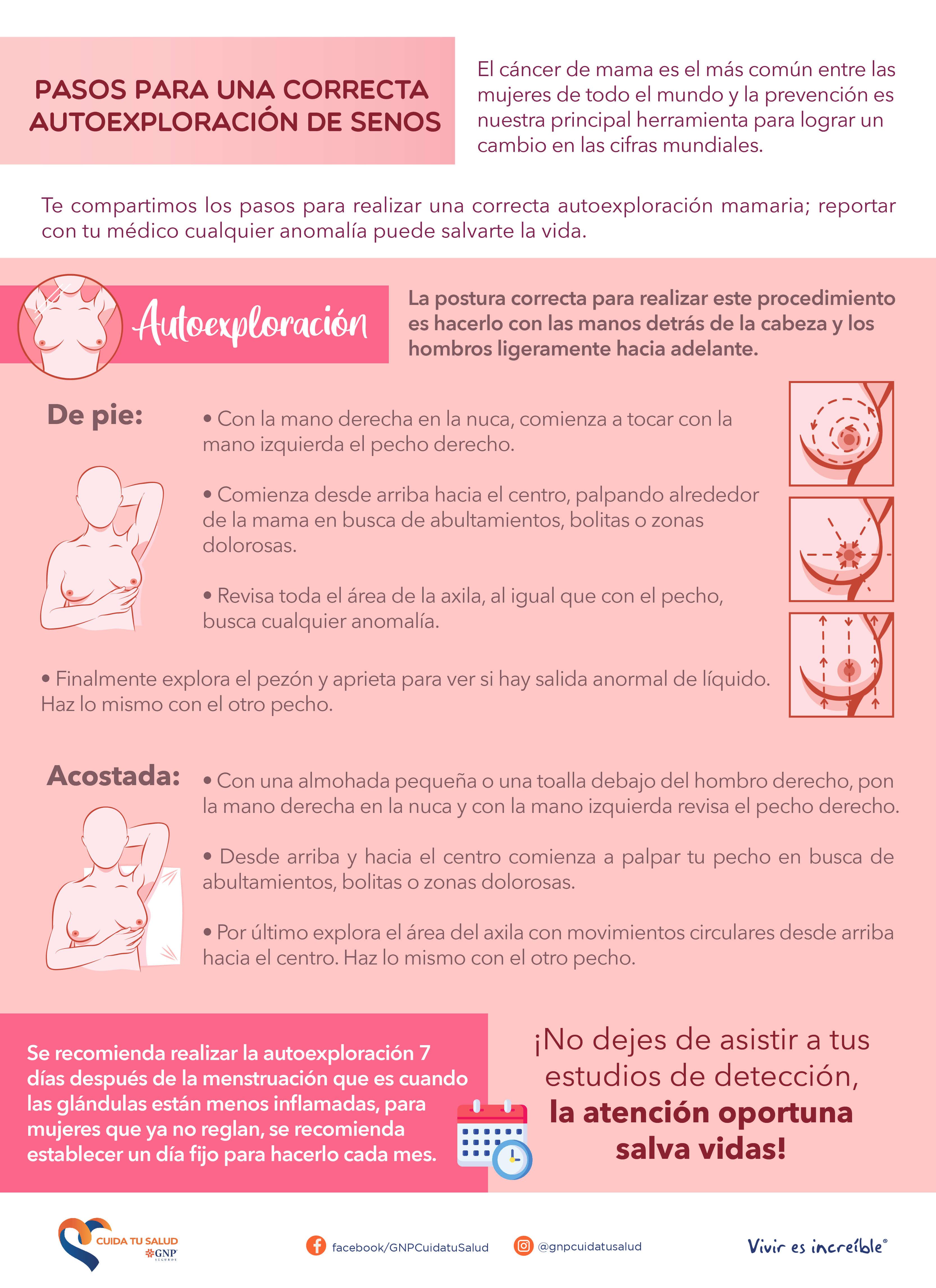 Pasos para una correcta exploración de senos